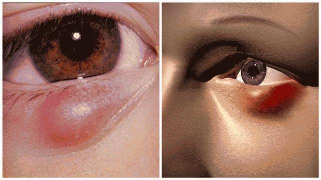 Ячмень на глазу беременной лечение 45