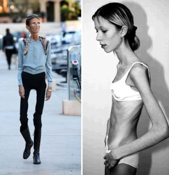очень худые девушки почему-то это
